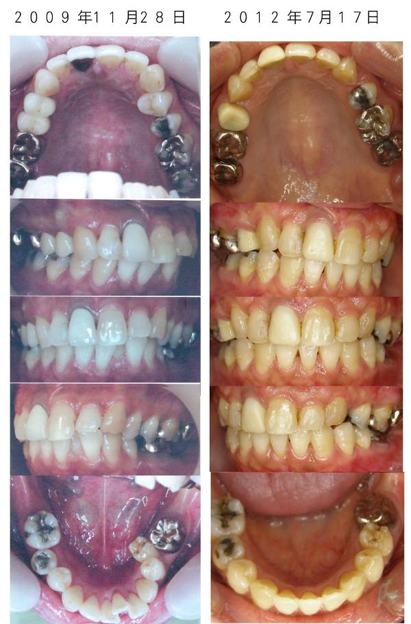大人の歯列矯正体験談